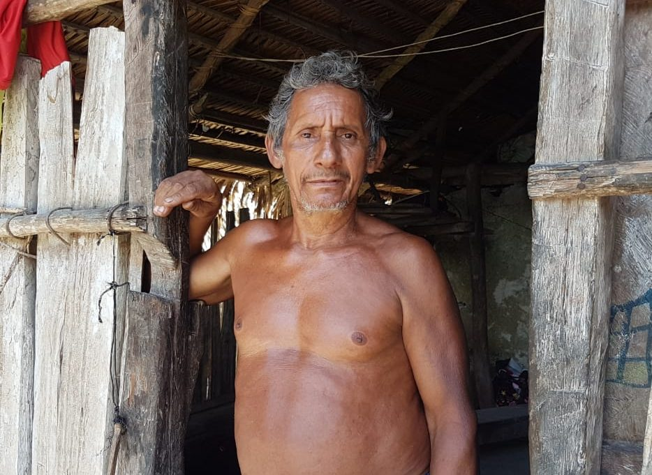 Image of a man from a Xingu River Basin community during the health expedition.